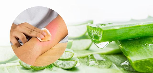 Khi bị bỏng bạn thấm gel nha đam lên vùng da ngay lập tức sẽ thấy dịu mát giảm đau