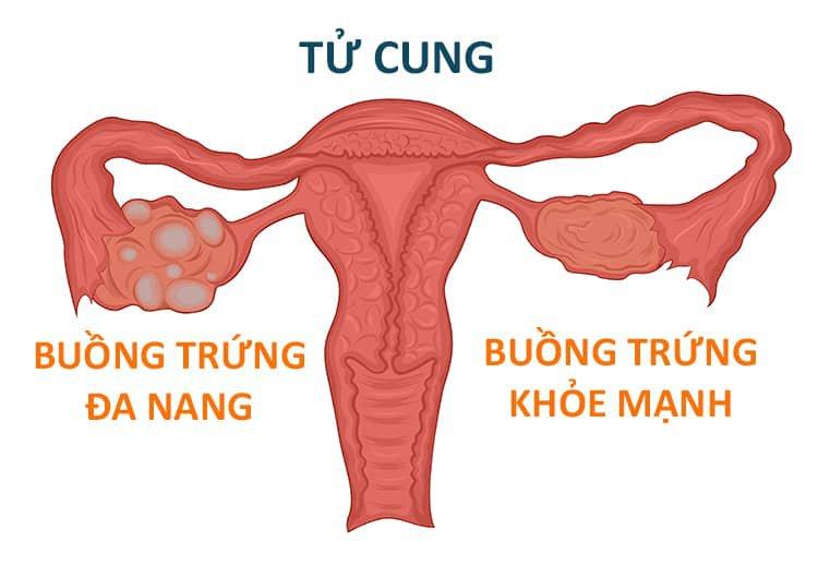 Bệnh lý đa nang buồng trứng ở nữ.