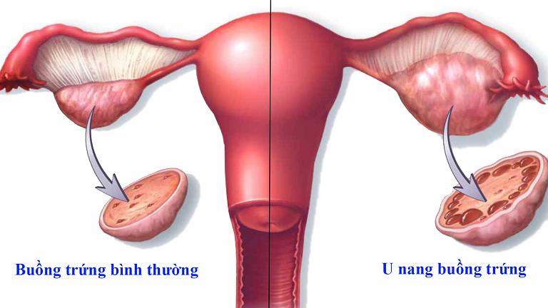 Nguyên nhân bệnh u nang buồng trứng.