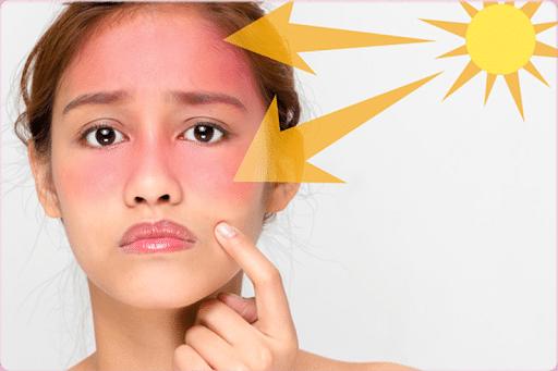 Kem chống nắng bảo vệ tốt nhất cho da khỏi những tổn thương.