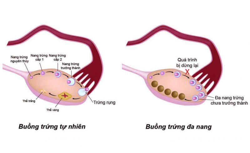 Hình ảnh buồng trứng tự nhiên và buồng trứng đa nang