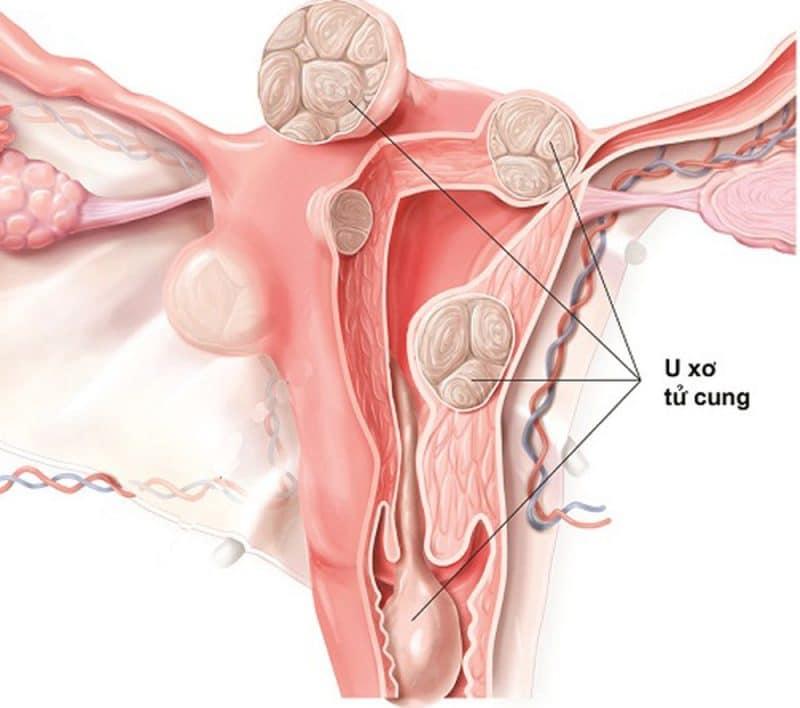 Tình trạng u xơ tử cung thường gặp ở nữ giới độ tuổi 30 - 40 tuổi.