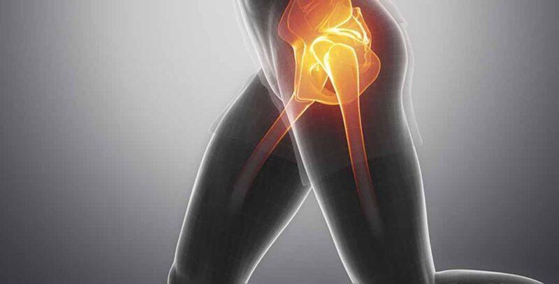 Những yếu tố nào làm tăng nguy cơ mắc bệnh sa tạng vùng chậu?