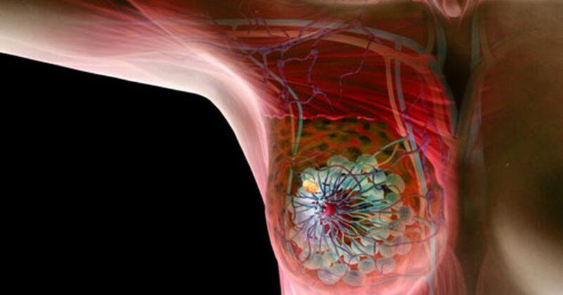 Những dấu hiệu và triệu chứng vôi hóa tuyến vú