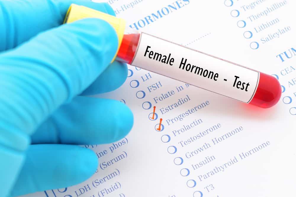 Ai nên thực hiện xét nghiệm nội tiết tố nữ?