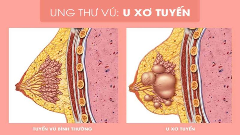Làm thế nào biết được bạn bị thay đổi sợi bọc tuyến vú?