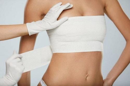 Bạn nên biết những gì trước khi thực hiện phẫu thuật nâng ngực?