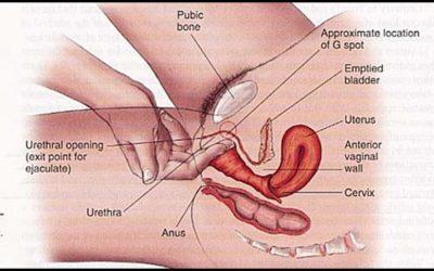 Hội chứng co thắt âm đạo là gì?