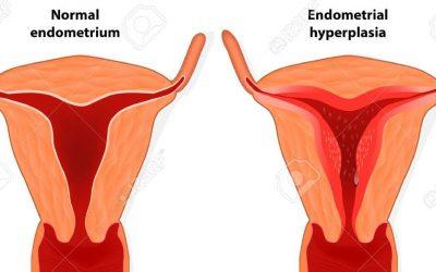 Hình ảnh mô phỏng niêm mạc tử cung mỏng