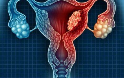 Những dấu hiệu và triệu chứng u nang buồng trứng là gì